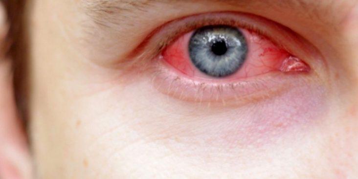 Cara Cepat Cegah dan Obati Iritasi Mata atau Mata Merah