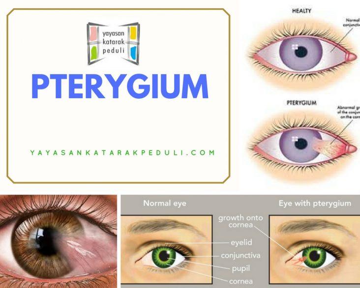 Tindakan Bagi Penderita Pterygium
